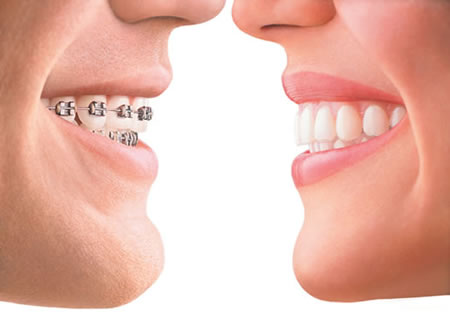 Dental insurance for Braces