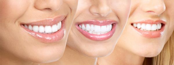 Dental Care Teeth Whitening