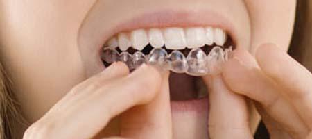 How To Use Teeth Whitening Gel