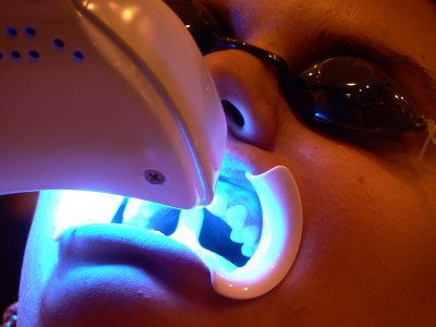 Laser Whitening Teeth Cost