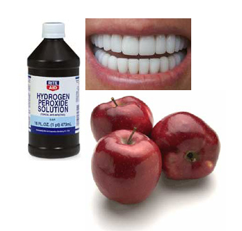 Peroxide Teeth Whitening Side Effects