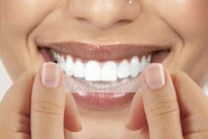 Teeth Whitening Strips Reviews