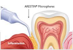 Gum Disease Treatment At Home