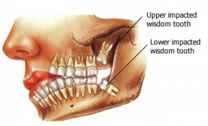 Wisdom Teeth Removal Cost